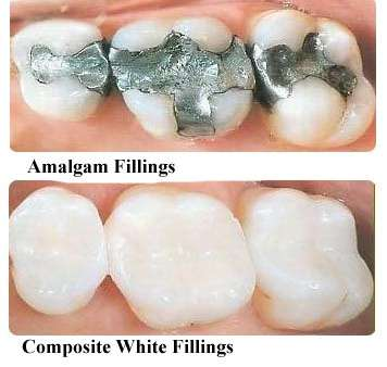 A Filling Is Used To Fill The Area Of Tooth Where Cavity Was Removed Fillings Are Also Remedy Problems Like Minor Moderate Cracks Chips