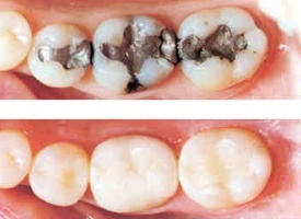 927_composite-fillings