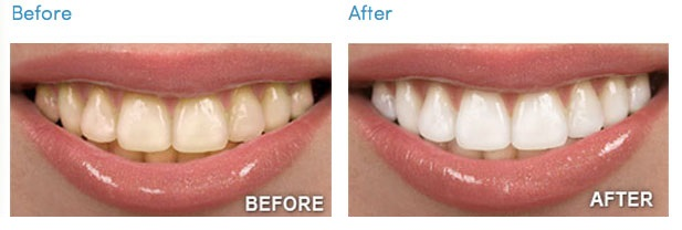 408_before-after-teeth-whitening